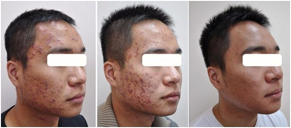 Before after acne scar surgery picture