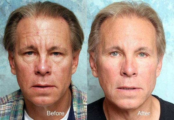 chemical peel look younger