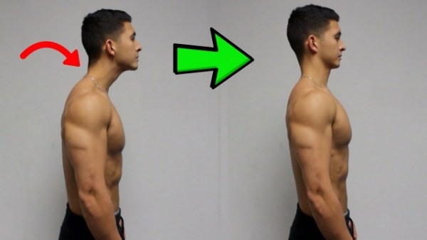 fix forward head posture
