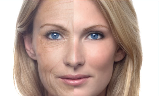 before and after photo of lady getting rid of wrinkles