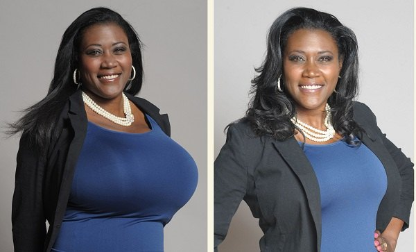 How To Reduce Breast Size Naturally Without Surgery