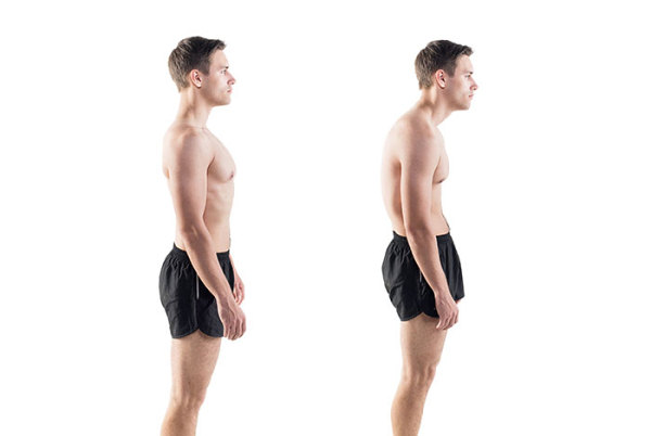 fix rounded shoulders posture